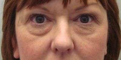 Borse sotto gli occhi? Ottieni uno sguardo più riposato e fresco con la blefaroplastica