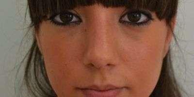 Rimodella il profilo del naso