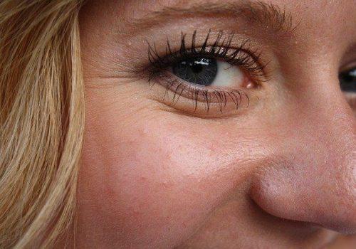 Trattamento per la correzione delle rughe del volto